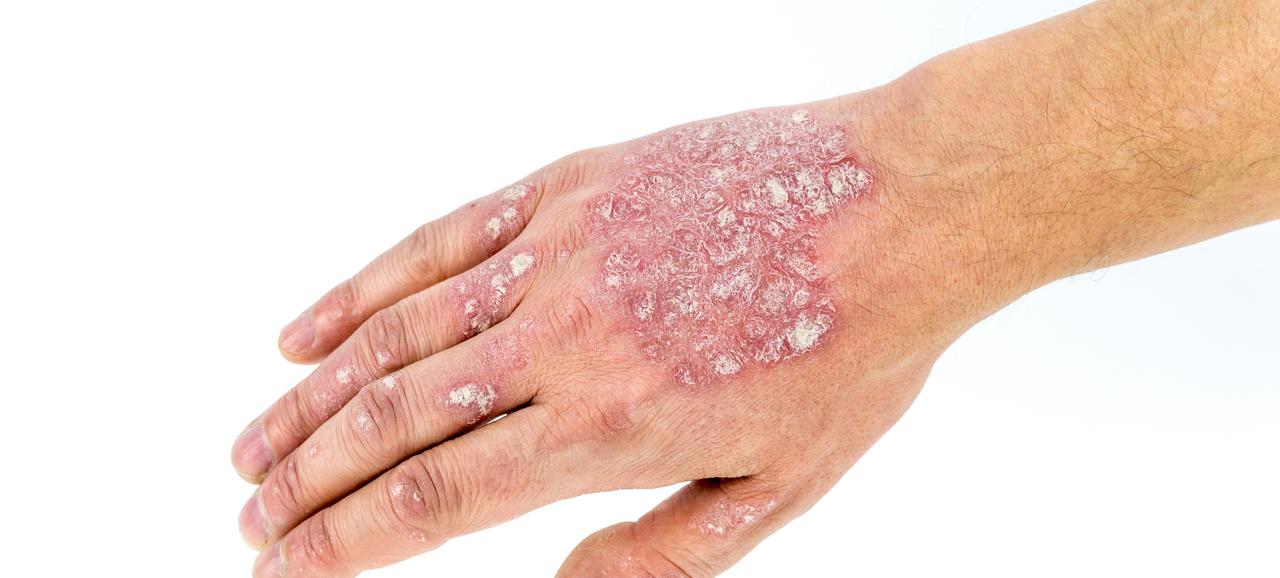Псориаз Ногтей Лечение Мази